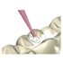 Microbrush Disposable Applicators-400-Microbrush-Dental Supplies