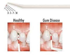 Periowise Probe-Premier Dental-Dental Supplies