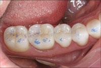 Bausch Articulating Paper - Dental Supplies