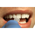 ProVeneer-In Office Veneer System-Silmet-Dental Supplies