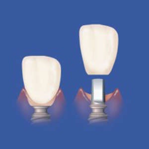 Implant Cement-Premier-Procedure.jpg