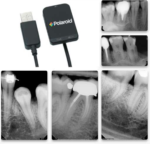 Polaroid KEREN HD IntraOral Sensors with Imaging Software - Dental Supplies