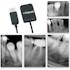 Polaroid KEREN HD IntraOral Sensors with Imaging Software - Dental Supplies