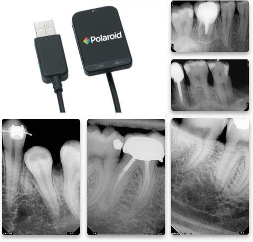 Polaroid KEREN HD IntraOral Sensors - Dental Supplies