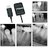 Polaroid KEREN HD IntraOral Sensors - Dental Supplies