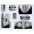 MARK3 Intaoral Phosphor Imagaing Plates - dental supplies